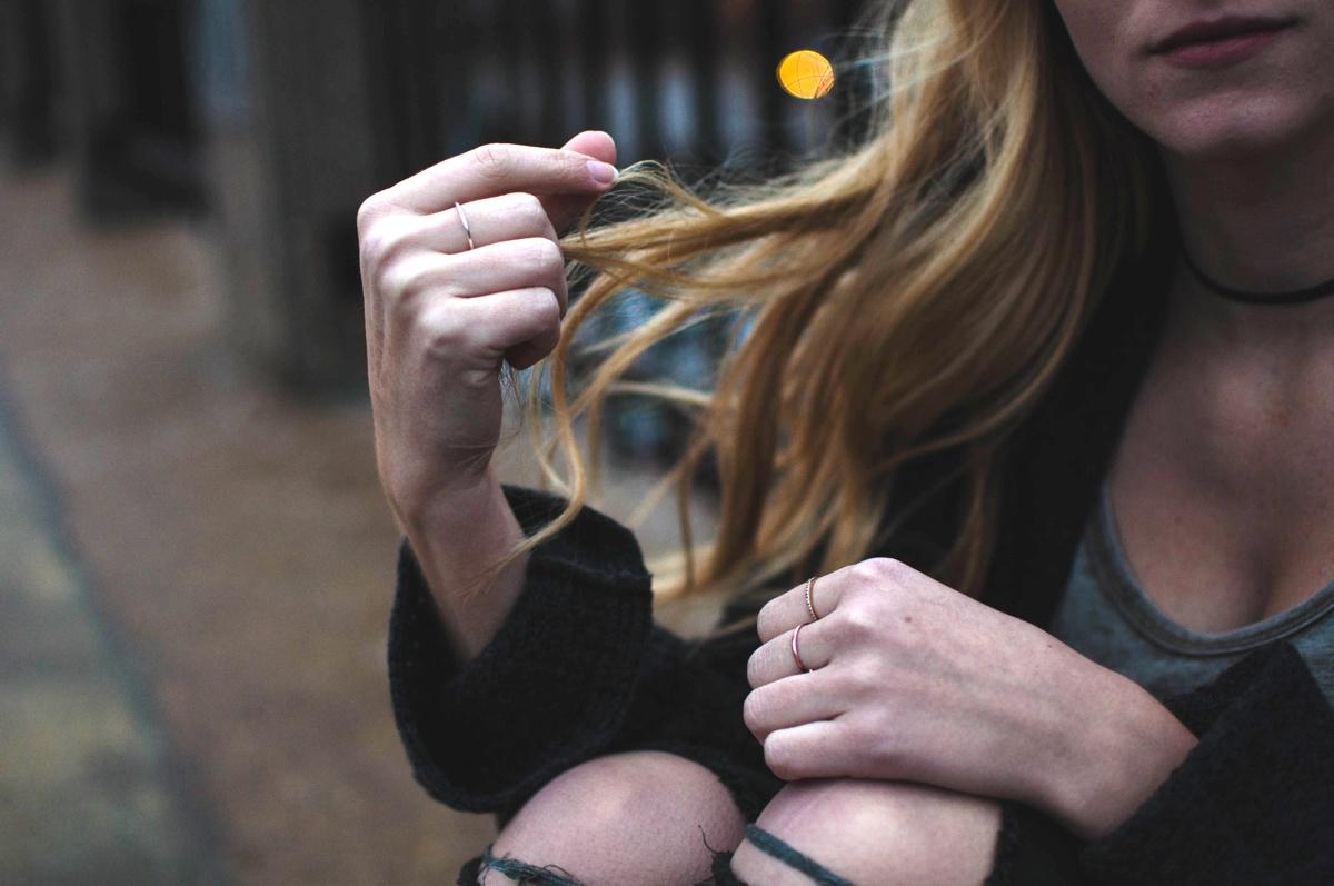 hair-loss-alopecia-lupus-symptom